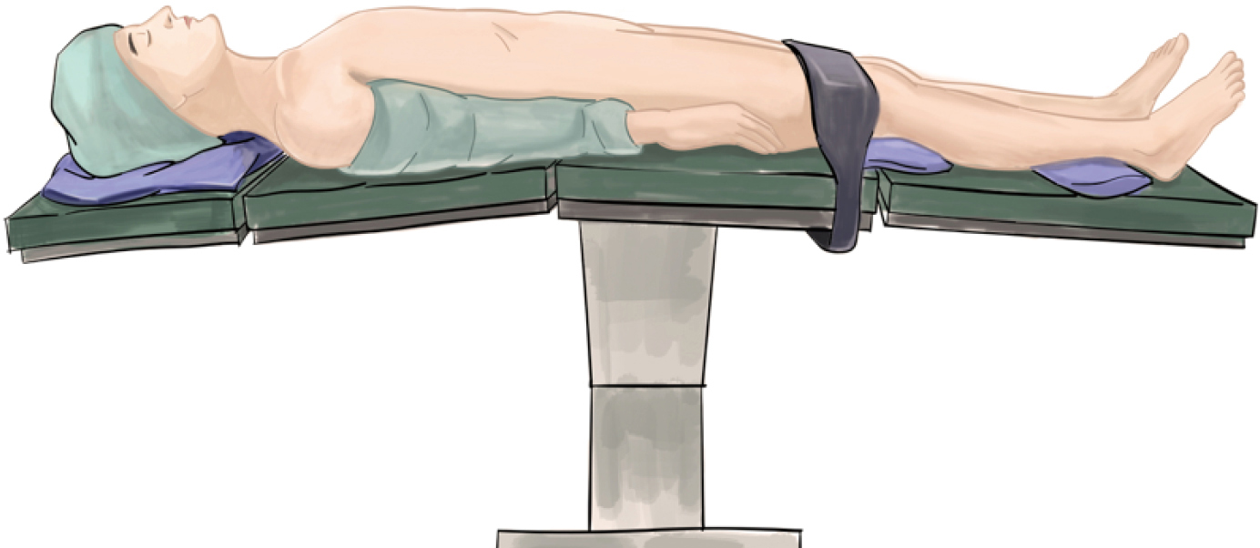 surgical supine position - 864×464