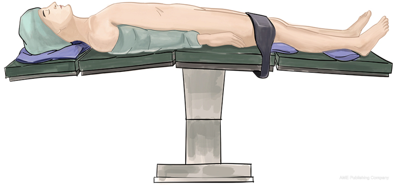 surgical supine positions - 864×464
